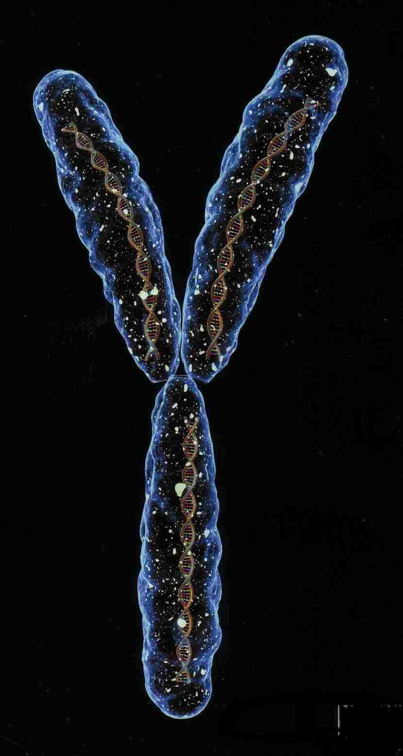 15q133 microdeletion syndrome  Chromosome